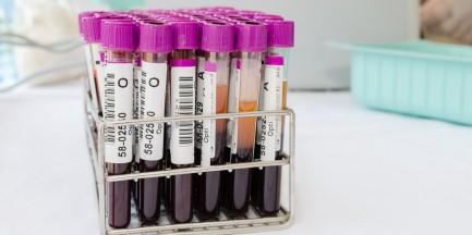 Studencki pomysł na błyskawiczne zbadanie grup krwi